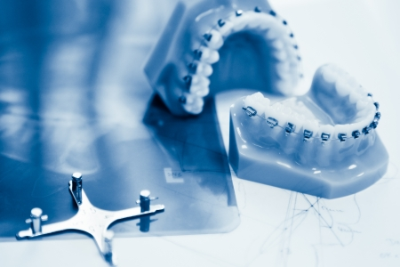 orthodontic tools in laboratory blue toned
