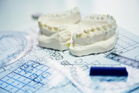 prothesis: orthodontic tools and drawings in laboratory Stock Photo