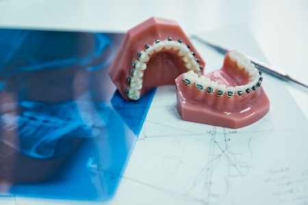 prothesis: orthodontic tools and xray in laboratory Stock Photo