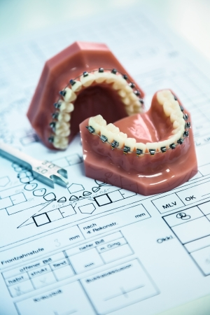 prothesis: orthodontic tools in laboratory with diagram Stock Photo