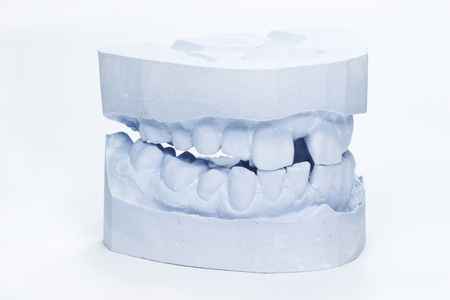 plaster mould: A set of adult dental impressions made from blue plaster Stock Photo