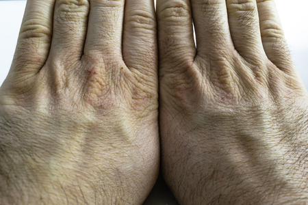 Close view of dry and cracked hand knuckles, skin problem Foto de archivo
