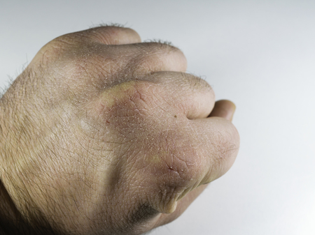 Close view of dry and cracked hand knuckles, skin problem Фото со стока