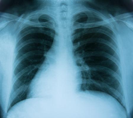 X-ray beeld van de Mens op de borst