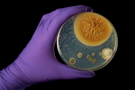black dish: hand in violet glove holds petri dish with bacterium, isolated on black