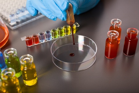 laboratory technician in blue gloves work on red liquid samples photo