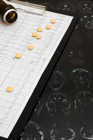 Electrocardiogram graph ECG, heart analysis. Black clipboard. Yellow pills. Imaging of the brain Stock Photo - 117465302