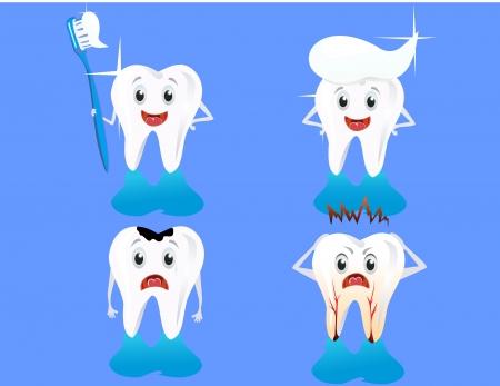 karies: varianter av människors tänder Illustration