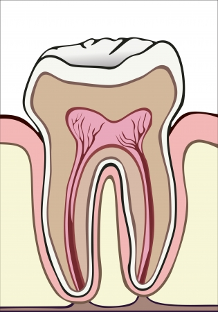 toothache: tooth