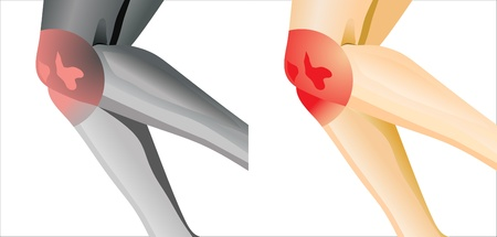 suffering from joint pain in knee Vector