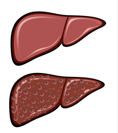 scarring: Liver Cirrhosis disease Illustration