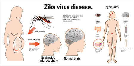 skin infections: Flat design illustration concepts Zika virus symptoms infographics with figures and text Illustration