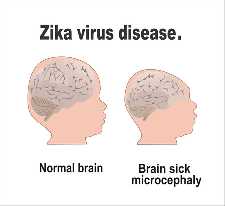 aedes: Microcephaly or Abnormal Smallness of the Head Concept. The Zika Fever Virus is linked to microcephaly birth defect cases from pregnant women bitten by Aedes aegypti mosquitoes. Illustration