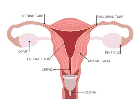Menstrual cup - feminine hygiene product, device for collecting blood during menstruation and period is used inside the vagina of woman female