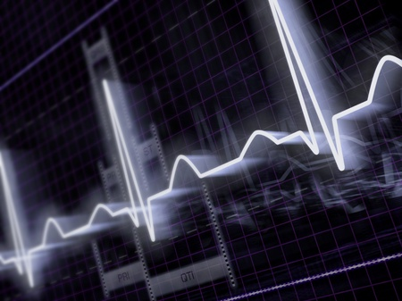 readout: Monitor for electrocardiogram signal. modern background.