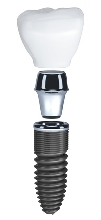 dental background: Dental implant isolated on white