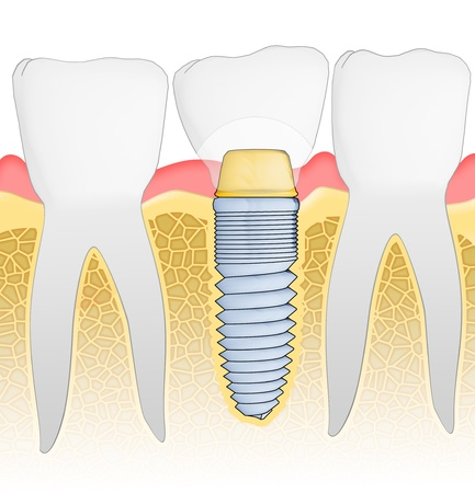 dientes con caries: Vista detallada de implantes dentales. Ilustraci�n. Foto de archivo