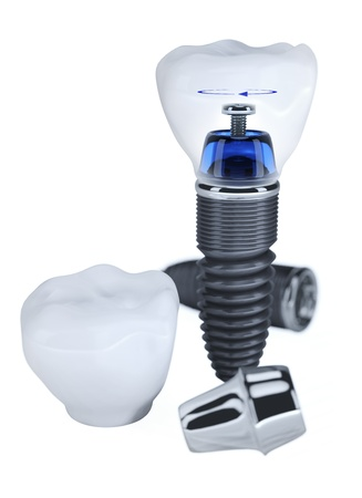 Dental Implant construction isolated on white Stock Photo - 8791497