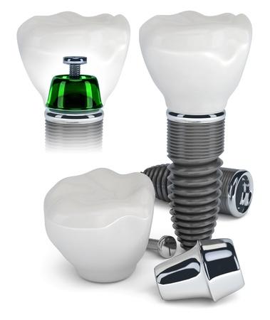 prothese: Technologie von Zahn-Implantaten, isoliert auf weiss Lizenzfreie Bilder