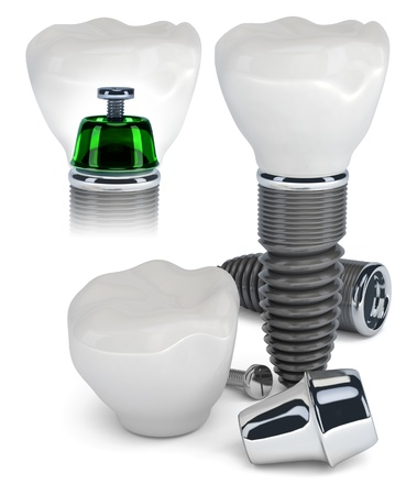 implants: Technology of tooth implants isolated on white