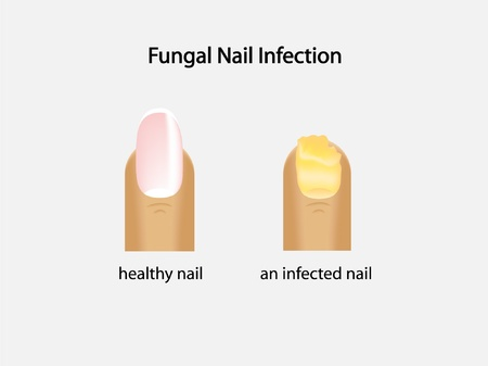 infected: fungal nail infection Illustration