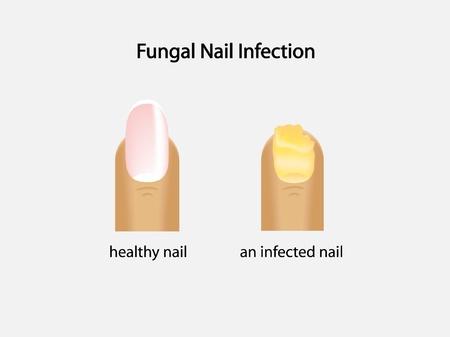 infektion: Nagelpilzinfektion