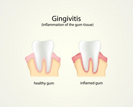 illustartion of gingivitis