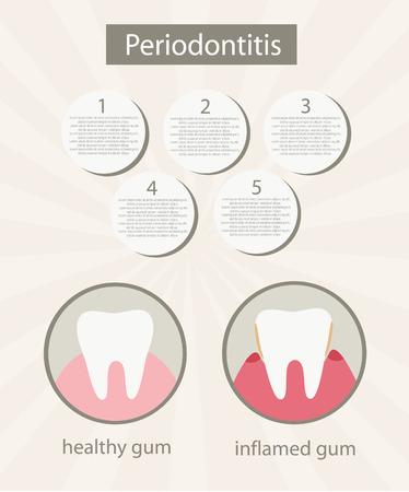 Human gum inflammation.Background.