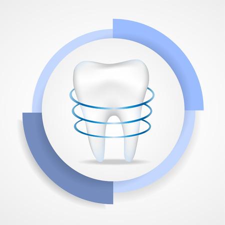 dental pulp: Illustration of dental protecting. Illustration