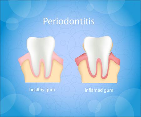 La parodontite. L'inflammation des gencives humaines. Illustration