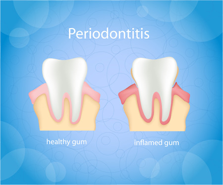 bacterial plaque: Periodontitis. Human gum inflammation.