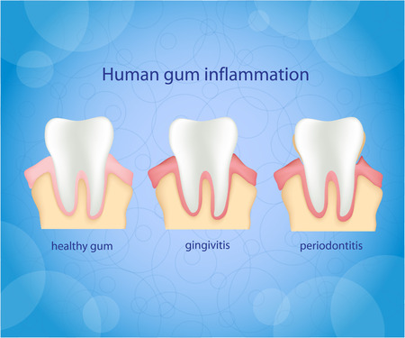 gum: Human gum inflammation. Illustration