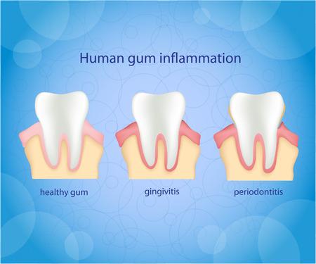 blue plaque: Human gum inflammation. Illustration