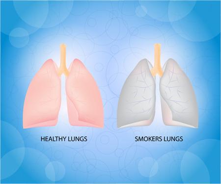 흡연자: Health lungs and smoker lungs. 일러스트