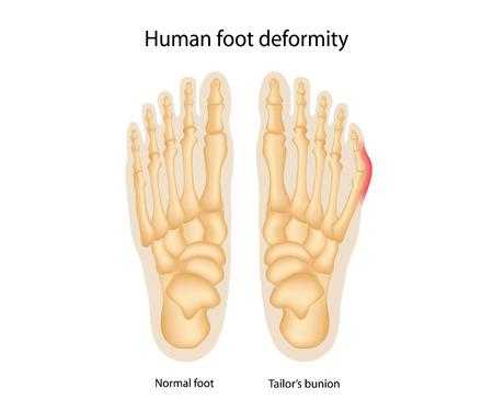 人間の足の変形。テーラーのブニオン。