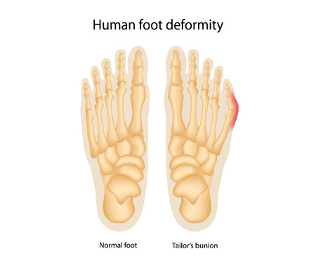 Menselijke voet misvorming. Kleermakers bunion.