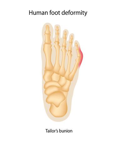 displaced: Human foot deformity. Tailors bunion.