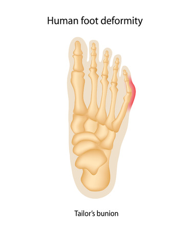Human foot deformity. Tailors bunion.