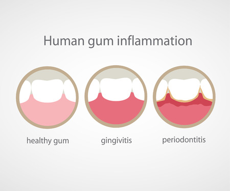 degeneration: Human gum inflammation.  Illustration