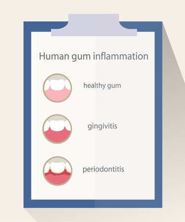abscess: Human gum inflammation.  Illustration