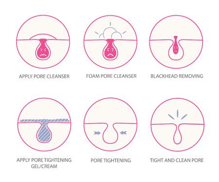 Blackheads removing and pore cleansing symbols set.Cartoon pore emotions.Angry pore.