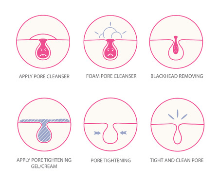 skin problem: Blackheads removing and pore cleansing symbols set.Cartoon pore emotions.Angry pore.