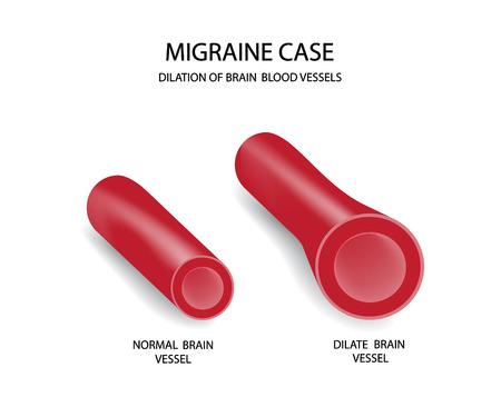 Migraine case. Brain blood vessels.