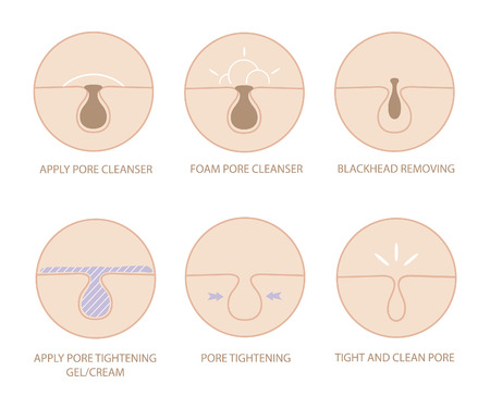 skin problem: Blackheads removing and pore cleansing symbols set.