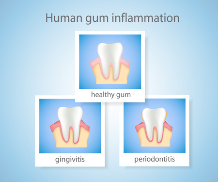 bacterial plaque: Human gum inflammation. Illustration