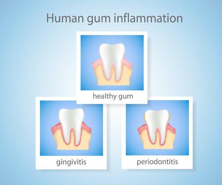Periodontitis: Human gum inflammation. Illustration