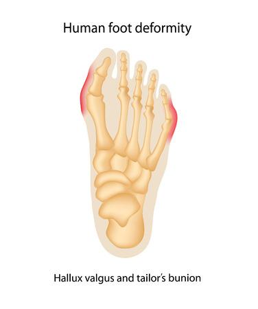 redness: Human foot deformity. Hallux valgus and tailors bunion.