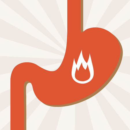 Heartburn illustration. Illustration