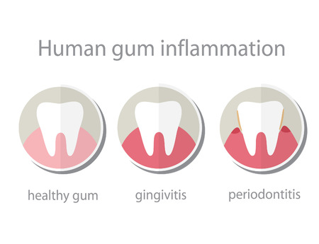 abscess: Human gum inflammation. EPS 10 vector file.
