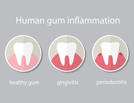 Human gum inflammation. EPS 10 vector file.